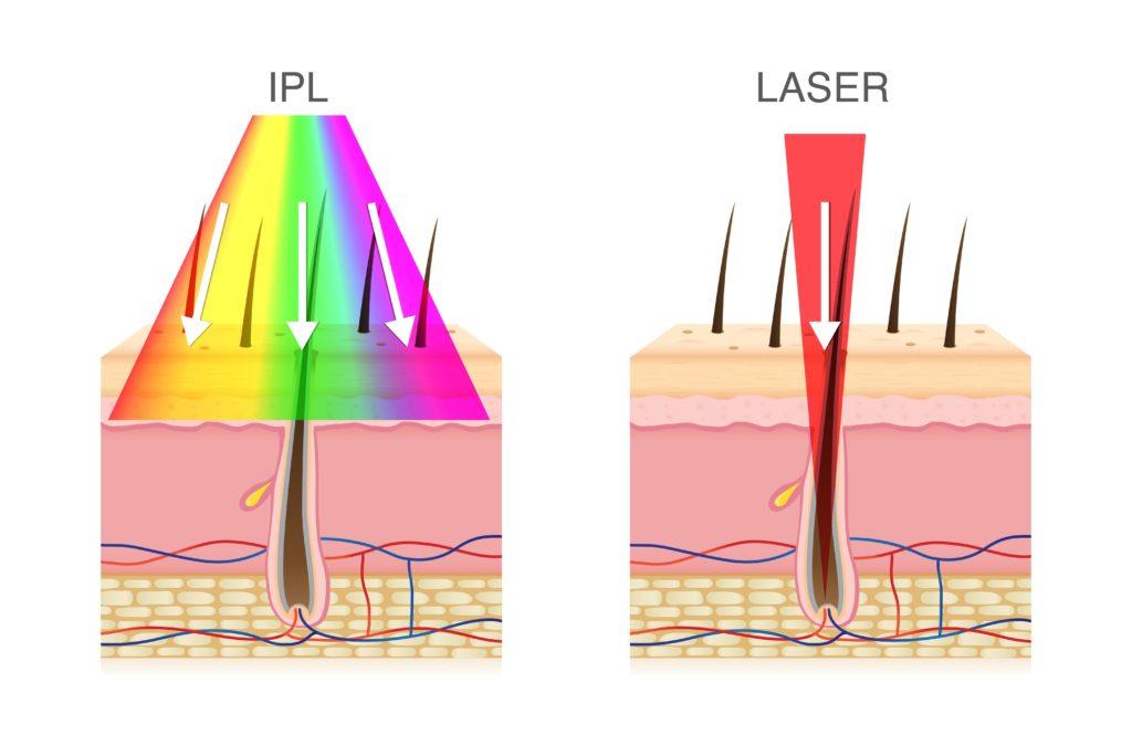 IPL vs. laser