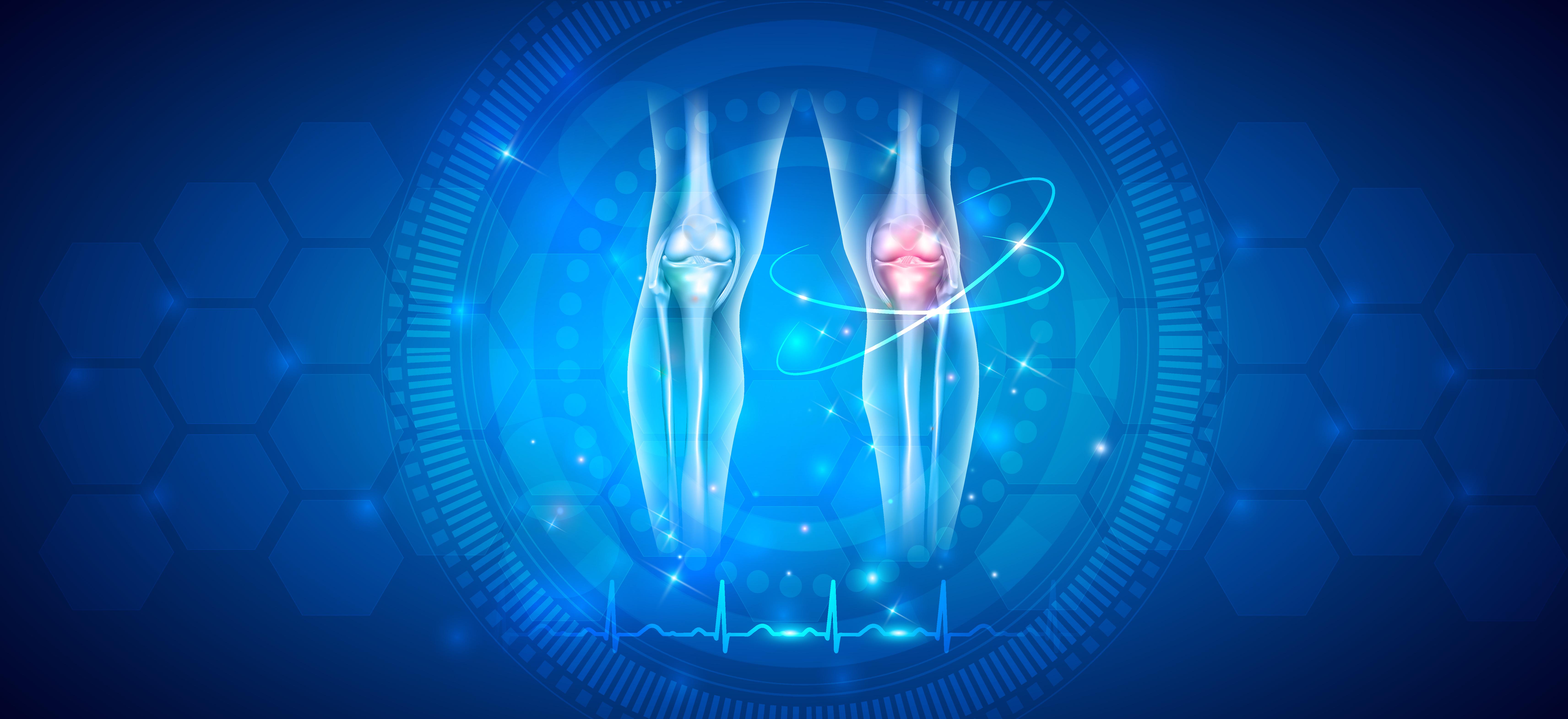 Veslovanie je aktivita šetrná ku kĺbom