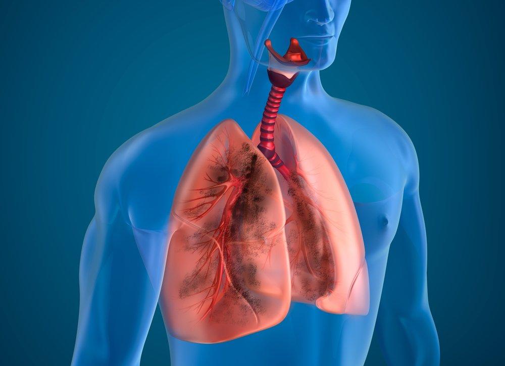 Postihnuté pľúca